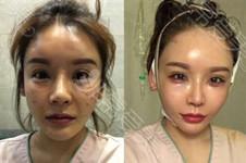 我做了面部筋膜提升术,没有想象的恐怖手术全程3小时