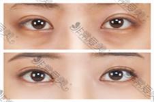 去眼袋手術安全嗎?能保持多久?看完這篇就懂了!