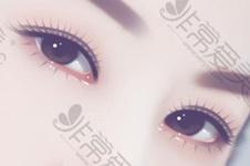 雙眼皮整形術后應該冰敷還是熱敷?敷多長時間合適?