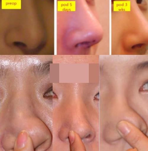 韩国鼻整形医院排行汇总 这五家都是韩国做鼻子厉害的医院
