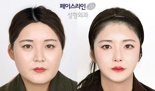 韩国做轮廓较好的医生汇总 这五位都是有名的颌面整形医生