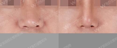 韩国鼻子修复哪家医院好?汇总韩国好的隆鼻修复医院及医生