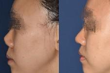 隆鼻后鼻头为什么会挛缩?鼻头挛缩后该怎么修复?