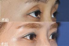 韩国哪里做眼睛好看?推荐韩国做眼睛整形比较好的医院医生!