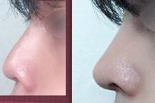 韩国哪里做鼻挛缩修复好?整友推荐韩国修复鼻子的好医院!