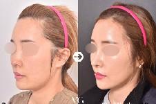 韩国哪里做面部提升好?推荐韩国当地面部提升好的整形医院!