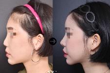 鼻修复华丽风自然风你喜欢哪种?推荐韩国鼻修复出名的医生!