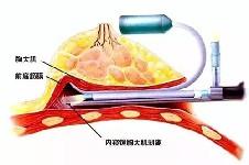 假体隆胸国内和韩国哪个好?韩国假体隆胸哪个医院更好?