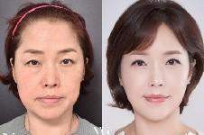 韩国哪家整形医院抗衰老效果好?这三家抗衰提升很有特色!