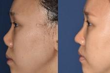 隆鼻挛缩要取出假体修复吗?韩国出名鼻挛缩修复医生有几位?