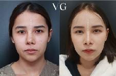 韩国做歪鼻矫正要多少钱?首尔哪家整形医院做歪鼻矫正更好?