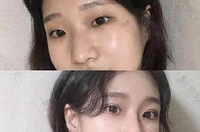 韩国小众整形医院系列之眼整形及修复医院盘点!