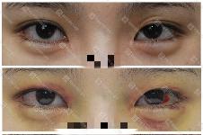 双眼皮能做成单眼皮吗?这可是韩国来丽整形特色,案例在此!
