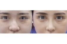 韩国可来熙鼻头鼻翼缩小术,这几种类型的鼻子都可以单独做!