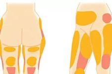 大腿环吸纯脂肪1200有效果吗?看看365mc大腿吸脂案例!