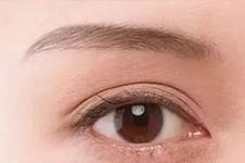 双眼皮改单眼皮怎么改?图片案例告诉你不但效果好还没疤痕!