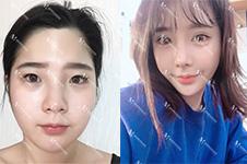 韩国迪美THE-M鼻部手术效果好吗?看案例恢复日记就知道了!