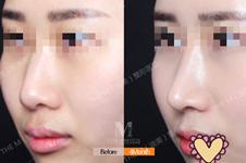 韩国迪美隆鼻整形效果如何?李柱洪执刀案例了解手术类别