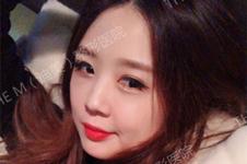 韩国迪美整形V-Loc埋线提升如何?拯救女性面部下垂唤醒青春