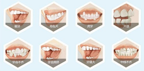 漳州牙齿矫正哪家医院好?当地人都推荐这几家!