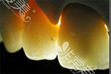 灵魂拷问:全瓷牙能用一辈子吗?为什么有人牙会烂在烤瓷牙套