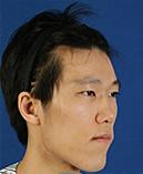 韩国BK整形医院下颚前突矫正手术