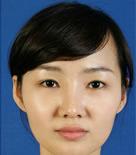 韩国BK整形外科重睑术整形案例图