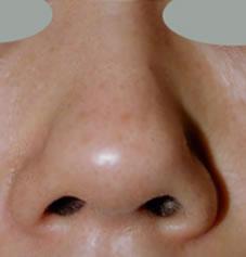 韩国江?南三星整形外科钝粗鼻尖整形案例