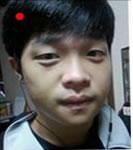 韩国原辰双鄂整形+鼻子修复案例图
