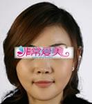 韩国BK整形医院-韩国BK整形外科轮廓整形对比案例