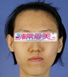 韩国BK整形外科面部不对称矫正对比案例