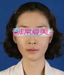 韓國BK整形醫院顴骨縮小對比案例