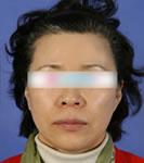 韩国BK整形外科拉皮手术对比案例