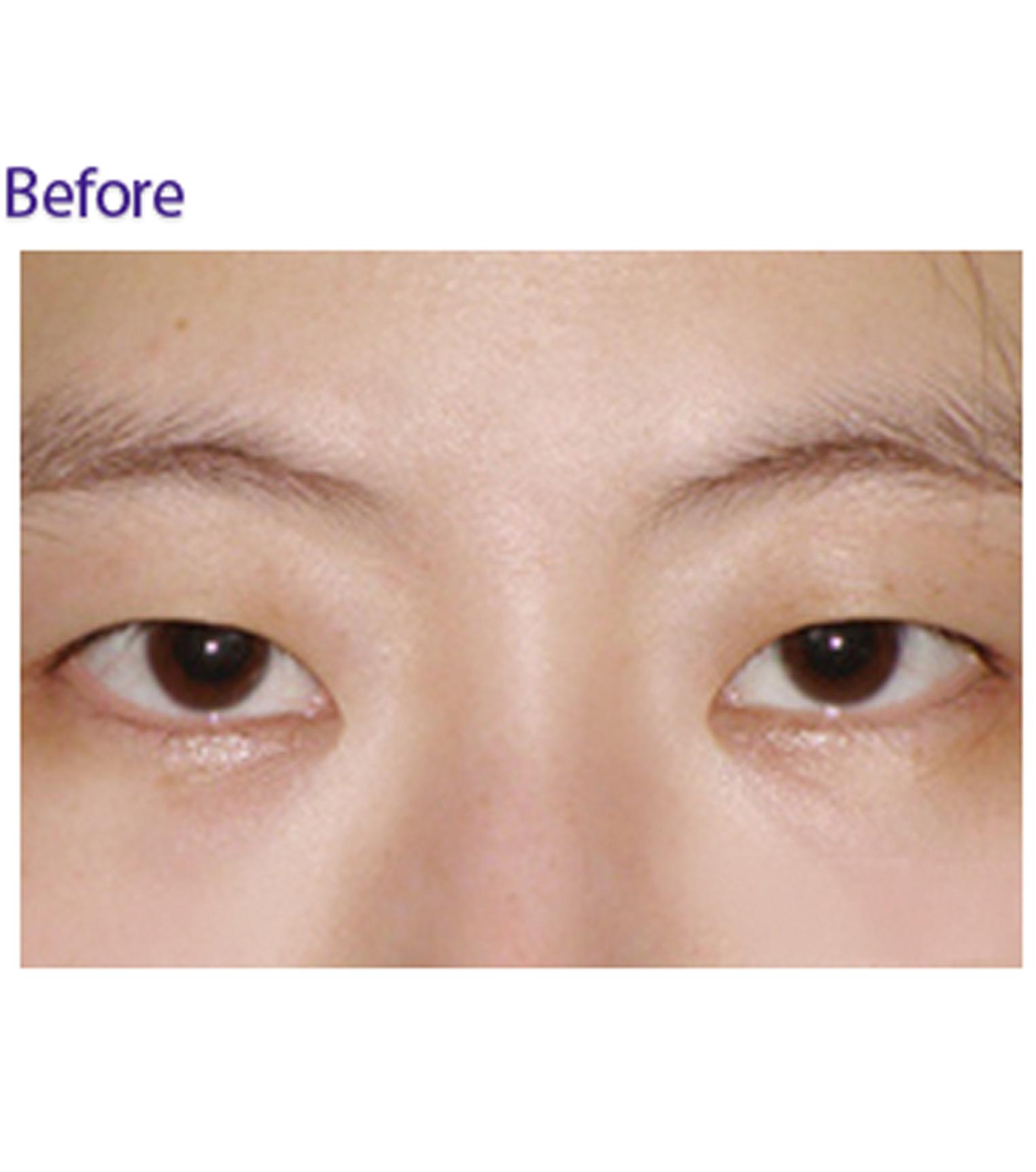 韩国mvp整形外科双眼皮手术对比图