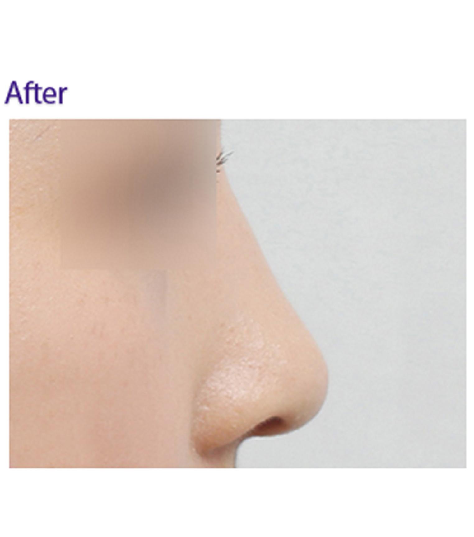 隆鼻手术对?比图