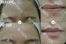 韩国POP整形外科5月份活动:皮肤管理多少钱一次明细曝光!