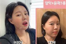 韩国齐娥整形外科医院官网轮廓手术、牙科优惠活动曝光!