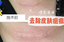 去除皮肤疤痕,错过PRP真皮再生术,你还要再等半年!