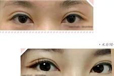 韩国美line整形医院双眼皮失败修复方法解析
