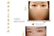 韩国美line开前眼角手术特色及案例分享