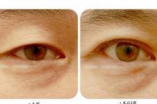韩国美line眼提肌手术前后对比效果