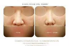 韩国美line整形医院鼻整形手术案例分享