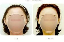 """韩国美line整形医院""""脂肪填充""""手术特色分析"""
