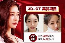 韩国优雅人整形医院华人福利大放送,美鼻降至249万韩币!