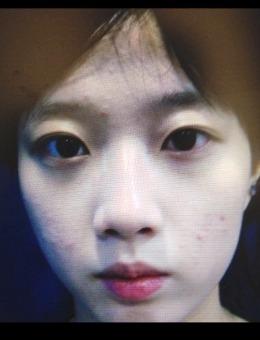 韩国纯真整形医?院华丽风隆鼻?+双眼皮案例?照