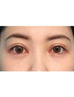 日本美真美容整形外科眼袋去除前后对比照片_术后