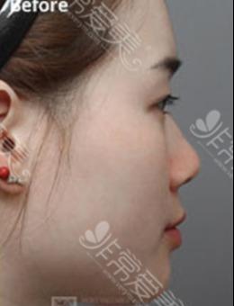 韓國MVP整容整形醫院-韓國MVP整形外科隆鼻手術對比案例