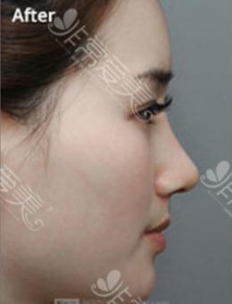 韩国MVP整容整形医院-韩国MVP整形外科隆鼻手术对比案例