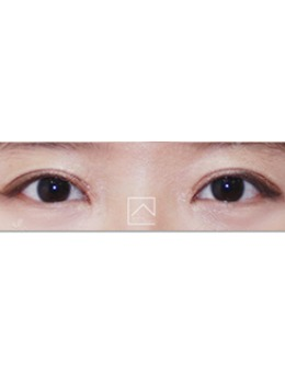 韩国misoline医院肉条眼修复案例对比