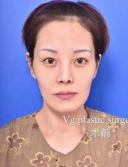 韩国VG百利酷整形外科官网全脸改造案例公布,术后效果超惊艳!